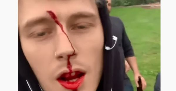 Machine Gun Kelly Bloodied During Outing With Daughter And Young Thug